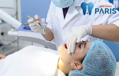 nhổ răng hàm trên có đau không