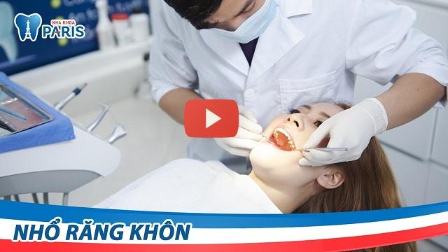 Nhổ răng khôn ở đâu an toàn