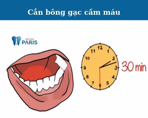 nhổ răng khôn xong nên làm gì