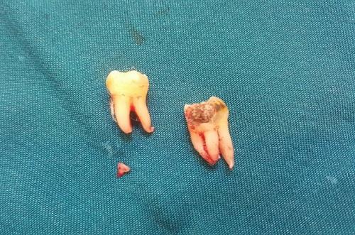 nhổ răng mà vẫn còn chân răng