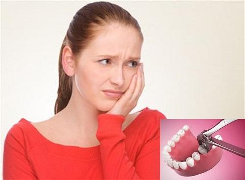 Nhổ răng xong bị nhức
