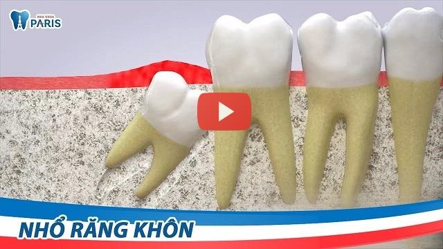 Bọc răng sứ - Phục hình răng chắc đẹp VĨNH VIỄN không đau nhức 6