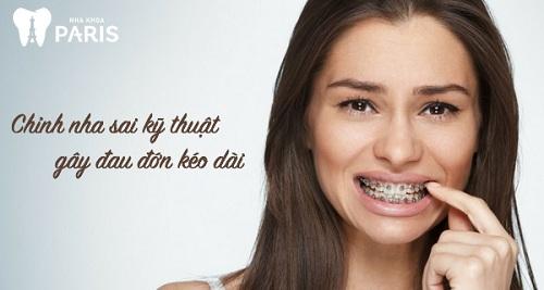 răng lung lay khi niềng