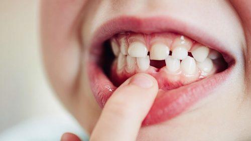 Răng sữa có bao nhiêu cái