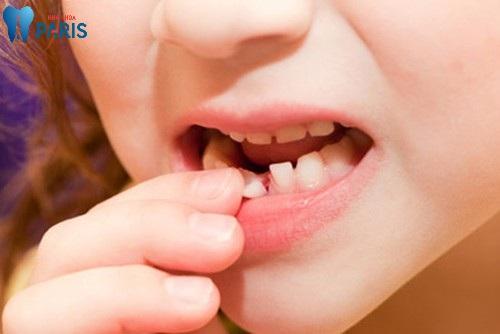 Răng sữa không rụng