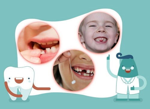 răng sữa lung lay bao lâu thì nhổ