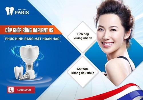trồng răng implant nha khoa paris