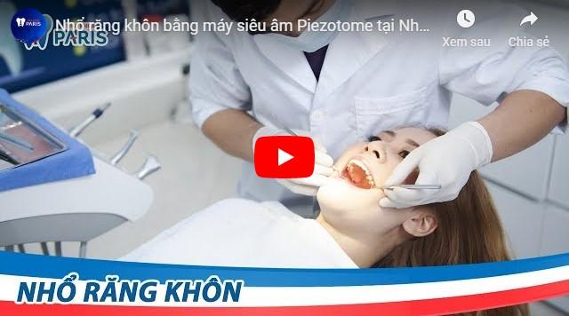 Giá nhổ răng khôn bao nhiêu tiền