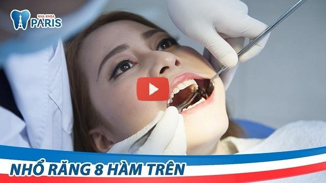 nhổ răng hàm sâu có đau không
