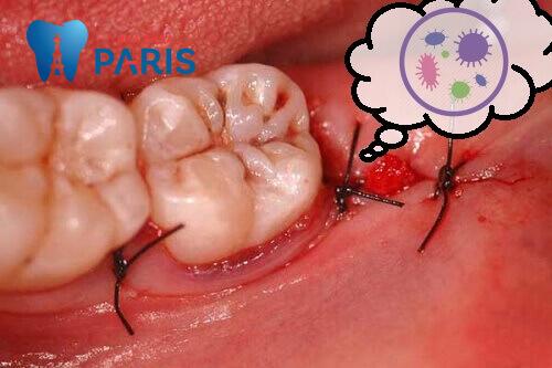 Biến chứng sau nhổ răng khôn