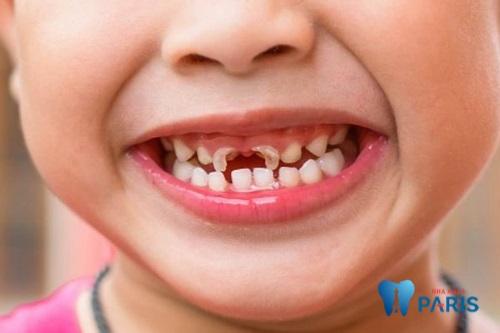 Cách trị sún răng cho trẻ