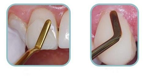 Đắp răng nanh sứ