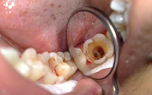 Dấu hiệu răng sâu đến tủy