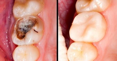điều trị răng chết tủy