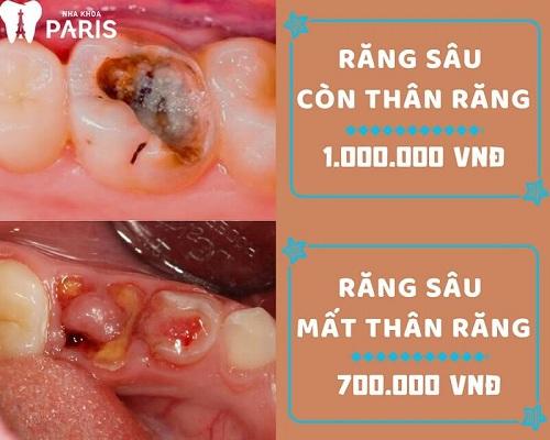 Giá nhổ răng cấm bao nhiêu tiền