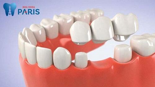 làm cầu răng số 6