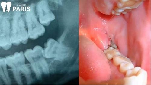 lợi trùm răng hàm dưới