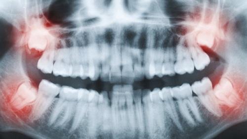 răng khôn mọc ở đâu