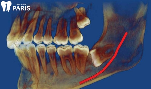 nhổ răng có ảnh hưởng đến thần kinh không