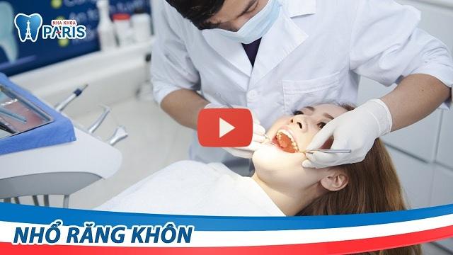 Nhổ răng có ảnh hưởng gì không