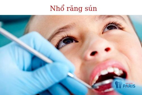 Nhổ răng sún
