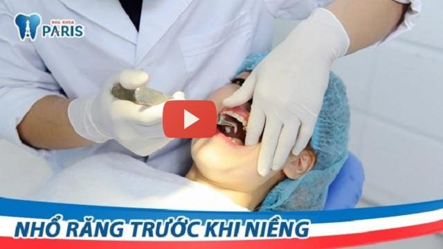 Quy trình nhổ răng số 4