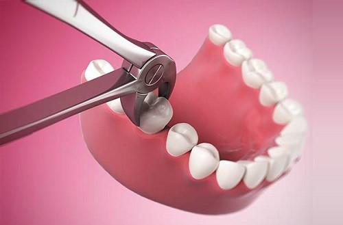 răng chết tủy có nên nhổ