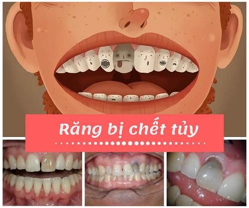 Răng chết tủy phải làm sao