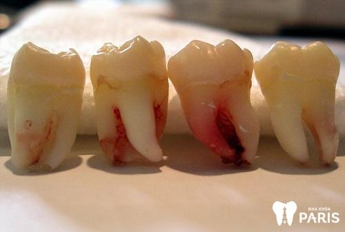 Răng hàm có mấy chân