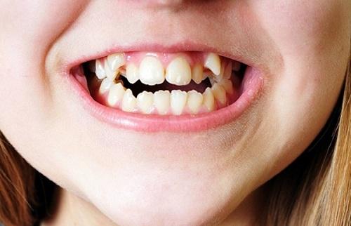 răng nanh người