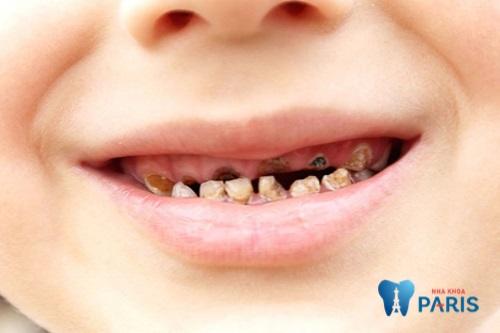 Thuốc trị sún răng cho bé