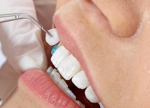 trồng răng nanh giá bao nhiêu