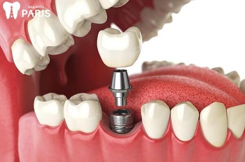 trồng răng số 6