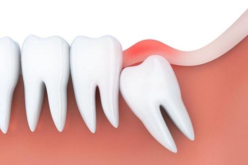 viêm lợi trùm răng khôn có tự hết không