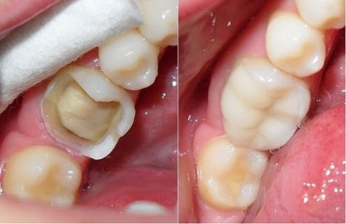 xử lý răng chết tủy