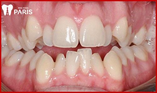 Răng khểnh thụt vào trong