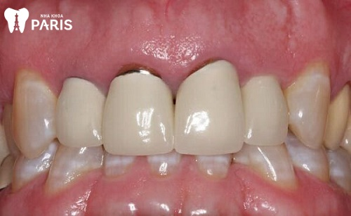 Bệnh tụt nướu răng cửa