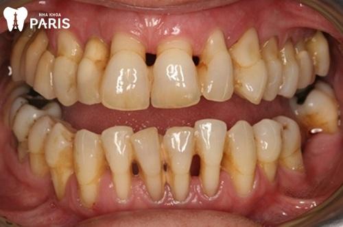 Bị sưng chân răng hàm dưới