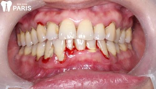 Bị sưng nướu răng hàm dưới có mủ