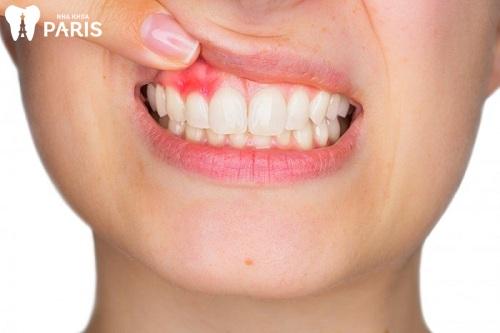 Bị sưng nướu răng không đau