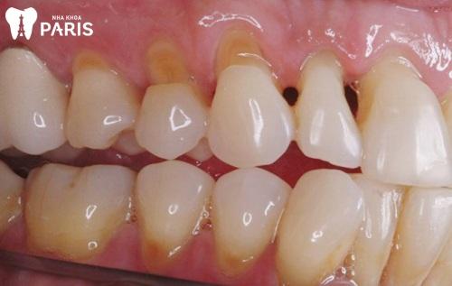 Bị tụt lợi hở chân răng và cách khắc phục