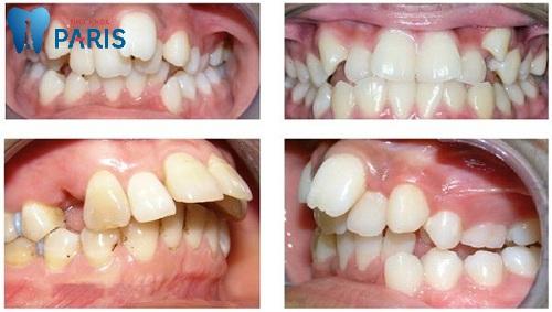 Cách chỉnh răng mọc lệch không cần niềng