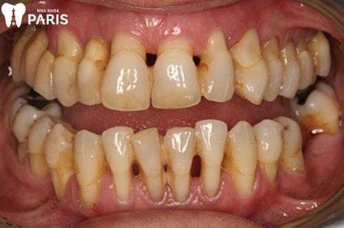cách chữa răng bị tụt lợi hiệu quả nhất