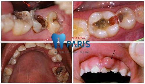cách nhổ răng sâu không đau