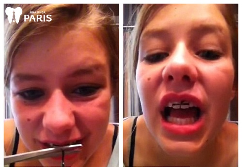Cách niềng răng lệch hàm