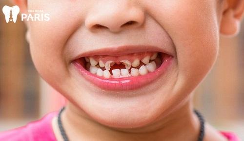cách phòng chống sâu răng ở trẻ em