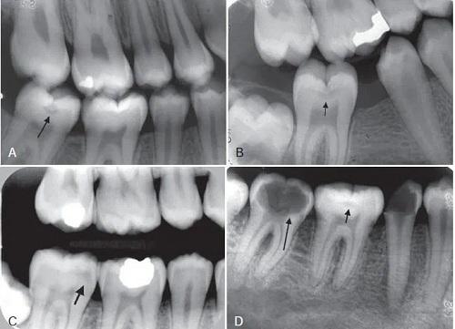 Chi phí chụp x quang răng hàm mặt