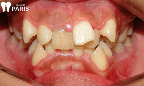 Chỉnh răng lệch giá bao nhiêu