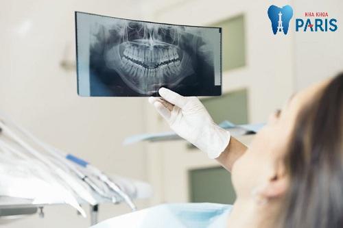 chụp x quang răng khi mang thai
