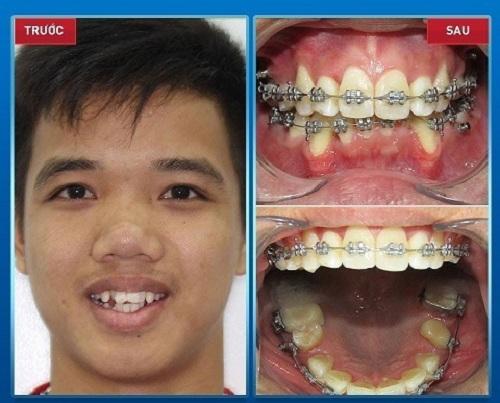 có nên nhổ răng hàm mọc lệch không